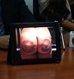 Former_Models_Rear_Disfigured_by_Costa_Rican_Plastic_Surgeon_thumb