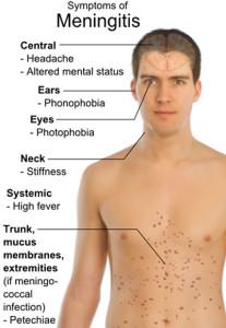 Symptoms_of_Meningitis_insert_public_domain